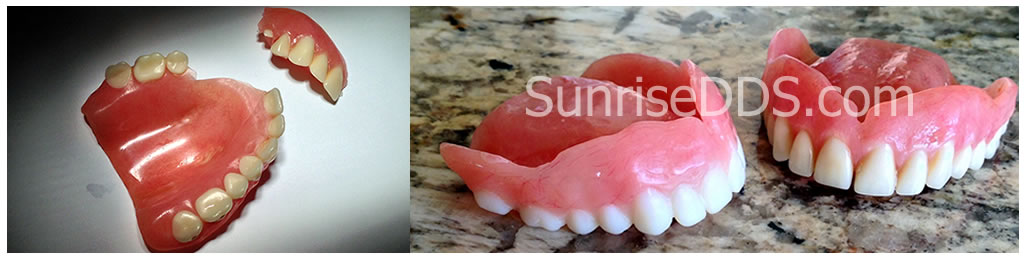 Emergency Denture in 2 Hours
