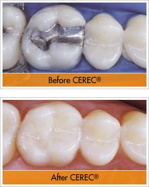 Cerec, single visit dentistry, 1 hour crown, 3D CAD/CAM (C&C) technology offered at Sunrise Dental Center in Bella Terra